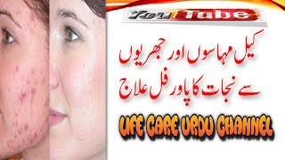 how to remove pimples from face naturally in  urdu | (Acne and pimples ) | Keel Muhase Ka Ilaj