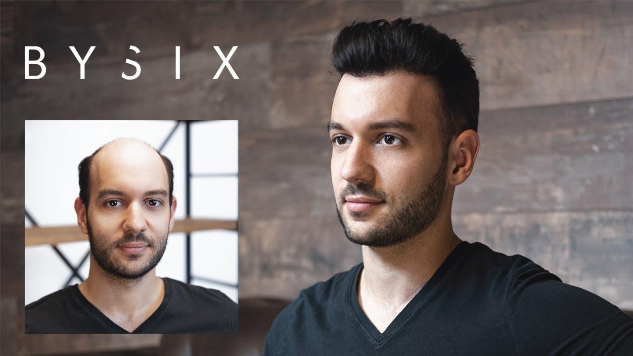 Complément capillaire indétectable | Hair transformation