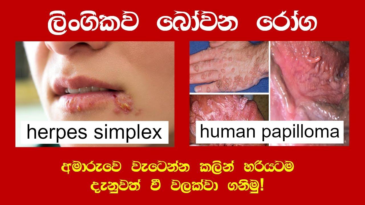 human papillomavirus in sinhala