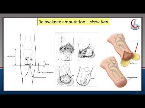 Lower Limb Amputations