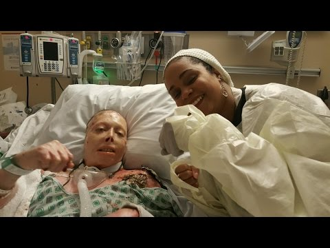 Judy's Journey: Woman horrifically burned in domestic violence case gets inspiration to keep fightin