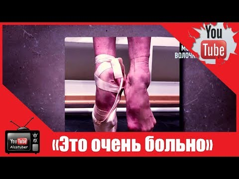 Изуродованные ноги Волочковой шокировали медиков