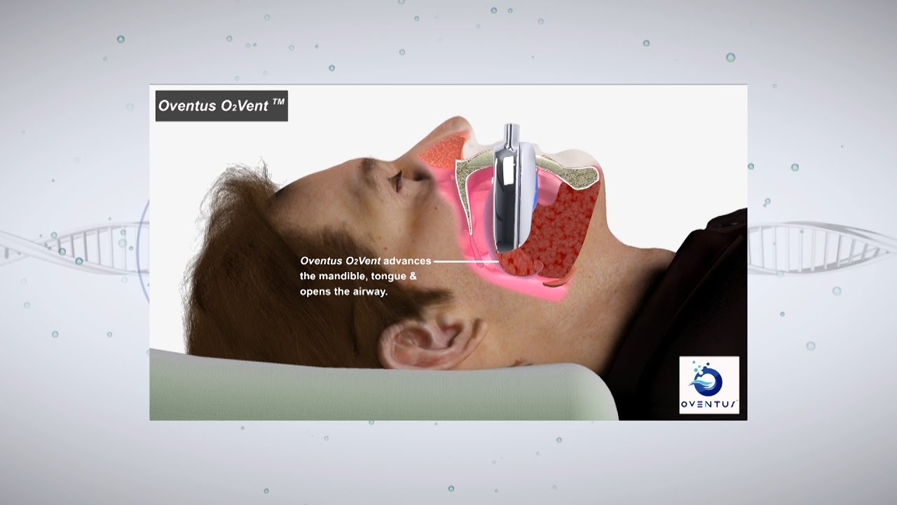 Beyond the Barriers: Obstructive Sleep Apnea Treatments