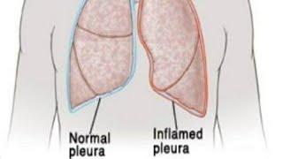 Pleurisy (Pleuritis).