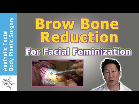BROW BONE REDUCTION HAIRLINE LOWERING BROW LIFT FOR FACIAL FEMINIZATION &  LIVE SURGICAL VIDEO DEMO
