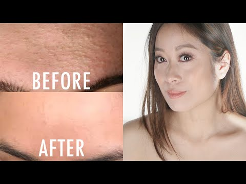 How To Get Rid of Whiteheads/Closed Comedones | Vivienne Fung