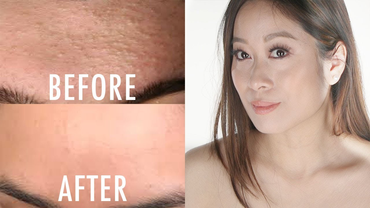 How To Get Rid Of Whiteheads Closed Comedones Vivienne Fung Youtube