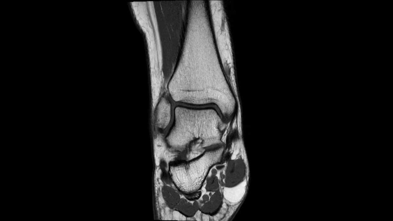 MRI of a normal ankle - complete MRI examination - YouTube