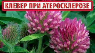 КЛЕВЕР КРАСНЫЙ ЛУГОВОЙ  | Полезные свойства | Лечение атеросклероза травами (клевером) | РЕЦЕПТ