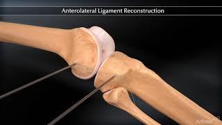 Réparation du Ligament Antéro Latéral