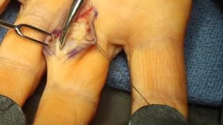 Live Surgery Ganglion Cyst Flexor Tendon Sheath Finger