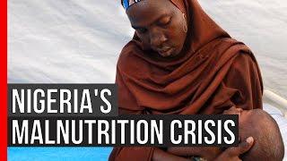 MSF PULSE: Nigeria's Malnutrition Crisis