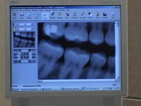 Digital Radiography  Imagine Advanced Dental Arts New Jersey