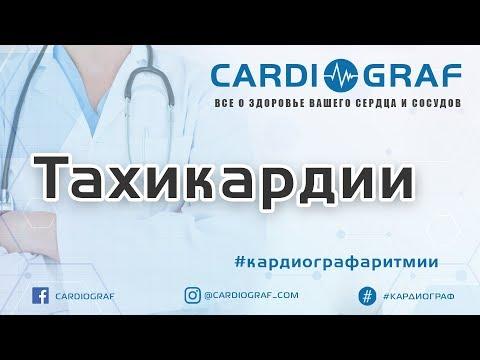 Тахикардия (учащенное сердцебиение): причины, симптомы и лечение