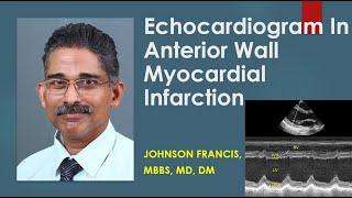 Colour Doppler echocardiogram in anterior wall myocardial infarction (AWMI)