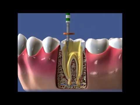 Пломбирование каналов зуба: методы, материалы