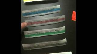 IV cannula sizes
