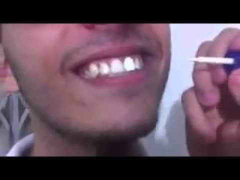 Como Clarear Os Dentes Em Menos De 1 Minuto Youtube