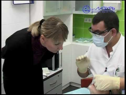 Лазерная хирургия.  Бескровная пластика уздечки губы.