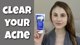 HOW TO CLEAR YOUR SKIN WITH BENZOYL PEROXIDE| DR DRAY