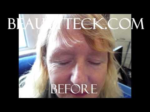 Before and after video guernsey skin and beauty