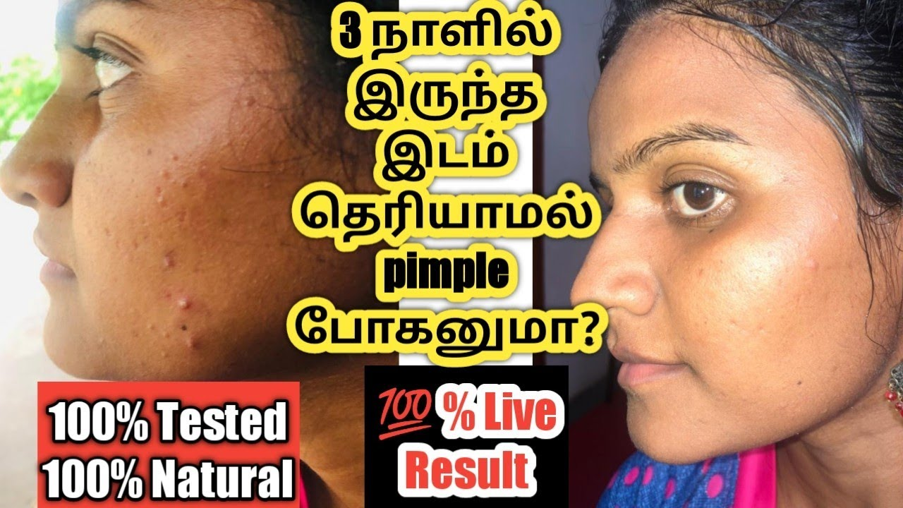 How to remove pimple at home in tamil/Home remedies for pimples/How to get rid of pimples/jasvikamed