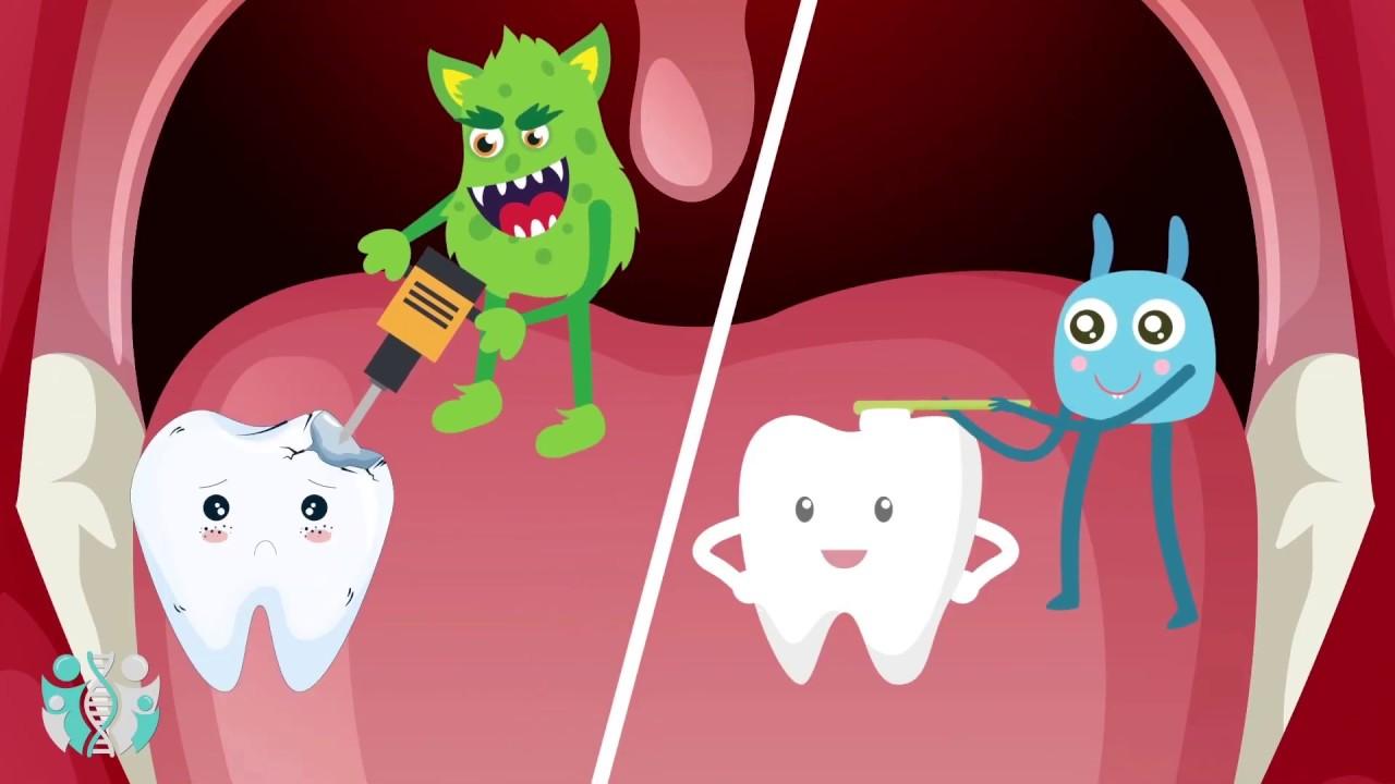 فيديو كيف يحدث تسوس الاسنان Youtube
