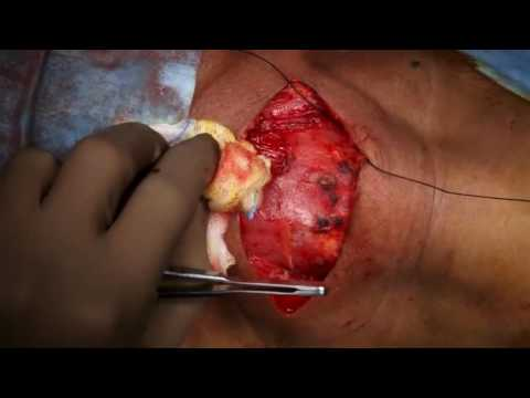 Microscopic Thyroidectomy ( Case 2 ) UNEDITED - Dr. Satish Jain - www.skullbase360.in