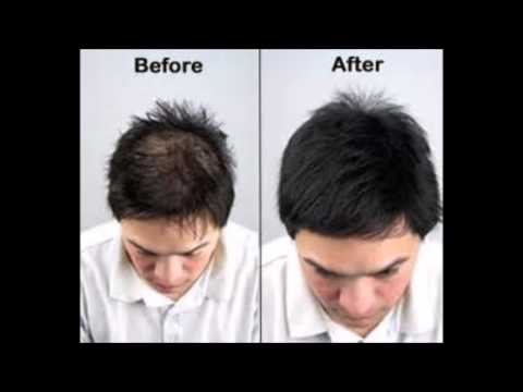 I Just Want My Hair To Grow Back - How To Stop Dht Hair Loss Naturally