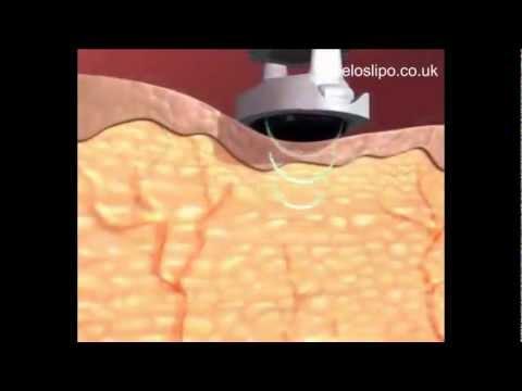 How Ultrasonic Cavitation Works