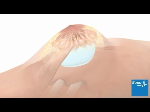 How breast enlargement surgery is carried out