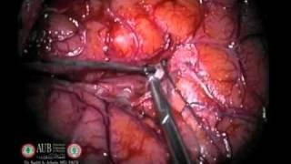Neurosurgery Case - Insular Tumor
