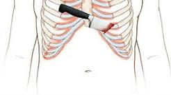 hqdefault - Relapsing Polychondritis Back Pain