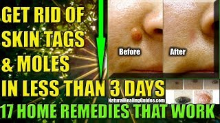 How To Remove Skin Tags Naturally: Get Rid Of Skin Moles Fast  (10 Home Remedies That Work)