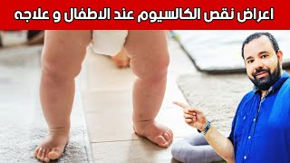 اعراض نقص الكالسيوم عند الاطفال و علاجه