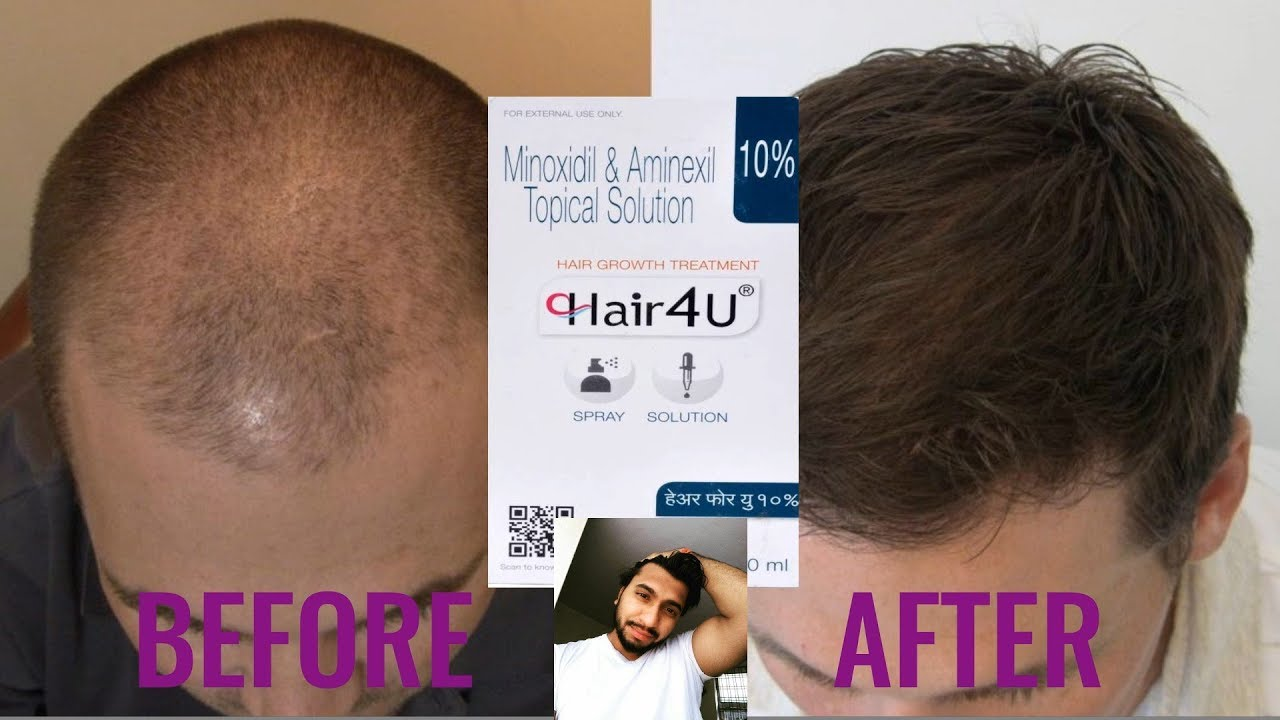 Hail Fall Treatment And Hair Growth Therapy By Hair 4u