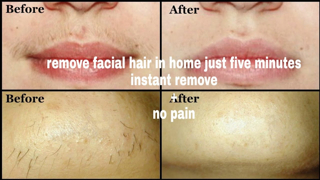 Remove Facial Hair In Home Instantly Ll Veet Wax Strips Review