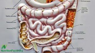Předcházení Crohnově nemoci pomocí stravy