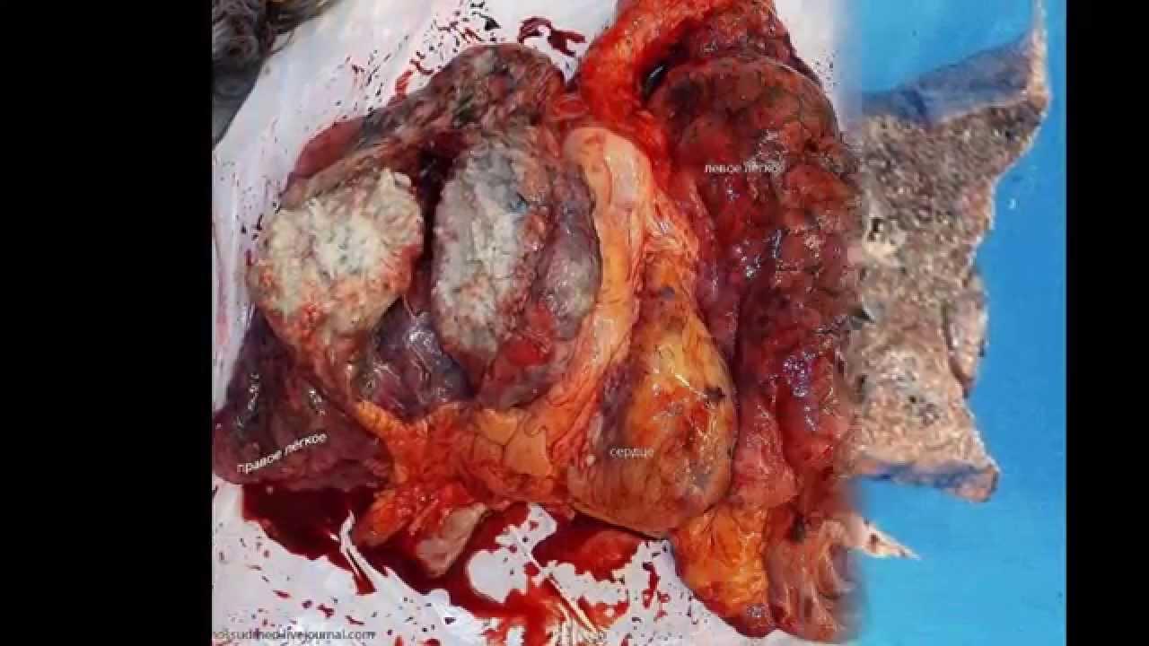 Лечение рака легких народными методами: как вылечить