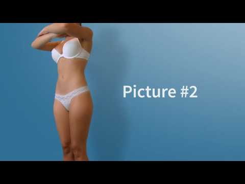 How to take photos for Liposuction (Lipo) and Brazilian Butt Lift (BBL) online consultation