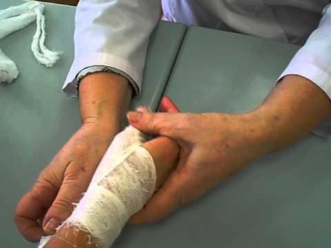 Как забинтовать большой палец на руке эластичным бинтом