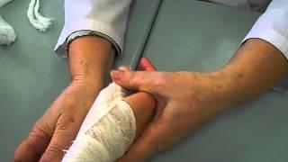колосовидная на большой палец руки