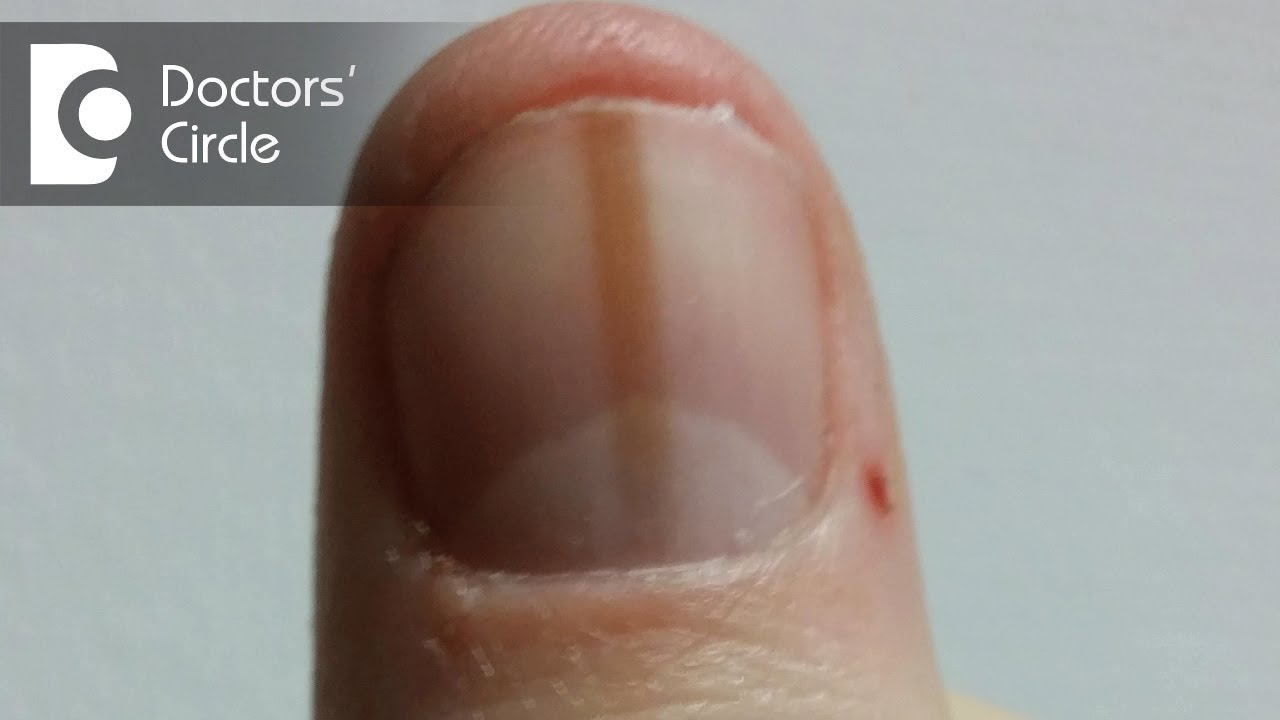 What Can Cause Red Thick Line Beneath The Thumbnail Dr Aruna Prasad