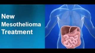 MESOTHELIOMA SURVIVAL RATE
