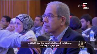 كل يوم - مؤتمر القاهرة الدولي للأمراض العصبية يبحث أحدث طرق علاج المخ والأعصاب