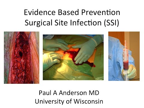 Prevention of Surgical Site Infection by Paul Anderson, M.D., M.S