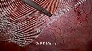 Laparoscopic Repair of Umbilical Hernia