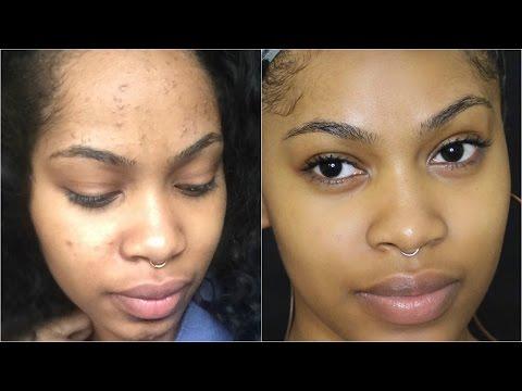 hqdefault - Facial Skin Rash Acne