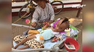 (VTC14)_Cậu bé 6 tuổi bị nứt đôi đầu không rõ nguyên nhân