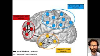 Interictal stereotactic-EEG functional connectivity in refractory focal epilepsies thumbnail